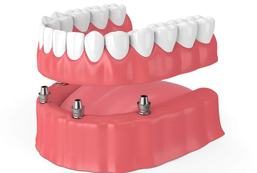 Permanent Dentures: The Pros and Cons