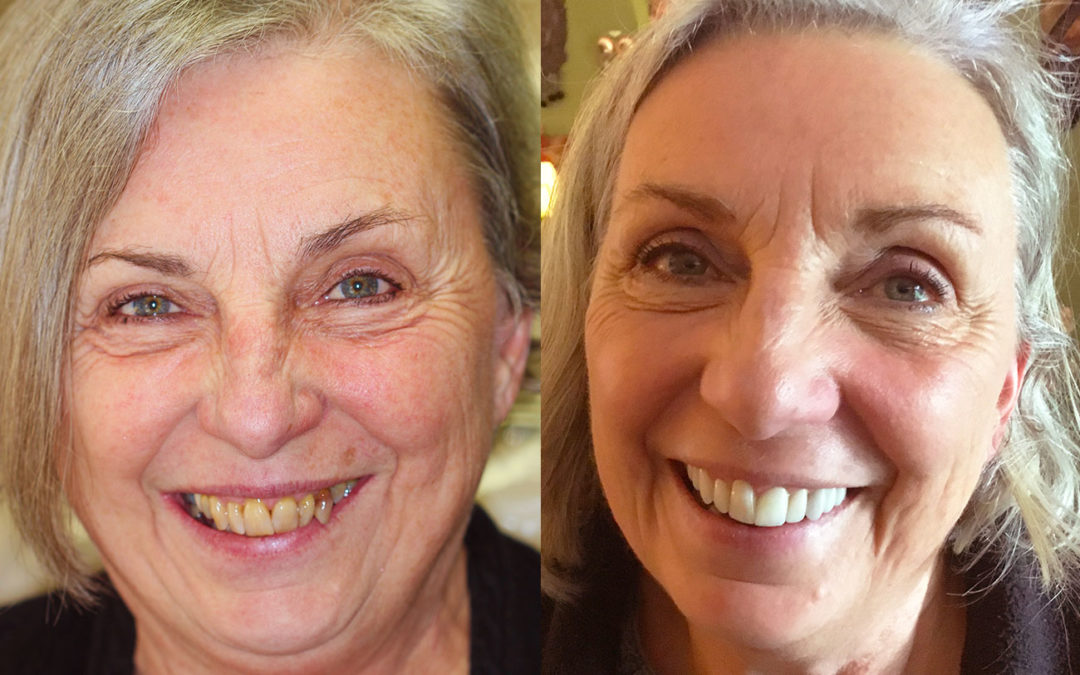 Shining Star: Mary's Full Mouth Restoration