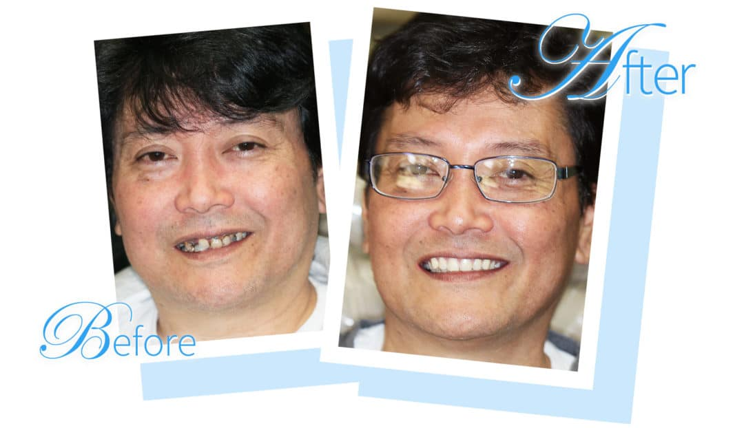 Patient before and after photo